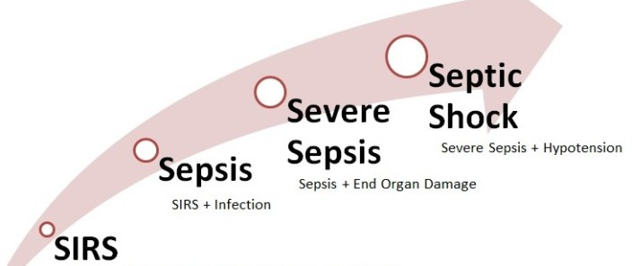 Image result for sepsis coding guidelines icd 10 2017